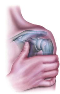 Shoulder Injury Discomfort